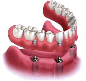 Implant-Supported-Denture